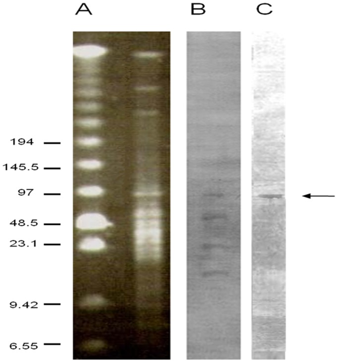 PFGE and hybridization analysis of I-CeuI and MluI double-digested DNA of the bacitracin resistant C. perfringens strain c1261_A. PFGE analysis of C. perfringens strain c1261_A total DNA (A). Southern blot of C. perfringens isolate c1261_A total DNA probed with rrn (B) and with bcrB (C). Sizes (in kilobases) are indicated on the left.