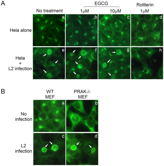 Chlamydia trachomatis acquisition of host sphingomyelin is independent of PRAK. (A) HeLa cells with (panels e–h) or without (a–d) C. trachomatis infection (MOI = 0.5) were treated without (a e) or with EGCG (1 µM, b f; 10 µM, c g) or rottlerin (1 µM, d h) 16 h post infection. Eight hours later, the cultures were subjected to BODIPY-FL-C5-ceremide labeling and visualized under a fluorescence microscope. Note that EGCG failed to block the accumulation of BODIPY-FL-sphingomyelin in the chlamydial inclusions (panel f g) while rottlerin did (h). (B) MEF without (panels a c) or with (b d) PRAK deficiency (PRAK−/−) were infected with C. trachomatis (MOI = 0.5) and 24 h post infection, the cultures were labeled with BODIPY-FL-C5-ceremide and observed as described above. Note that C. trachomatis organisms can take up BODIPY-FL-sphingomyelin from MEF cells with or without PRAK. The thick arrows point to chlamydial inclusions with while thin arrows point to the inclusions without the fluorescent sphingomyelin.