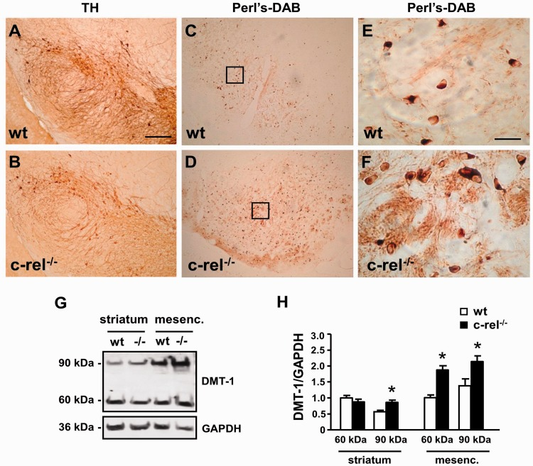 DMT1 immunoreactivity and iron staining in mesencephalon of 18-month-old c-rel −/− and wild-type mice. Tyrosine hydroxylase staining ( A and B ) and diaminobenzidine enhanced Perl iron staining ( C–F ) in sections of 18-month-old wild-type ( A, C and E ) and c-rel −/− mice ( B, D and F ). Higher magnifications of Perl iron staining are in panels E and F . While the number of tyrosine hydroxylase-positive neurons decreased, the iron staining significantly increased in the substantia nigra pars compacta and reticulata of c-rel −/− mice compared with wild-type mice. Representative immunoblotting of the ferrous iron transporter DMT1 in the striatal and mesencephalic extracts of 18-month-old wild-type and c-rel −/− mice ( G ). Densitometric analysis of DMT1 relative to GAPDH ( H ). DMT1 60 and 90 kDa bands significantly increased in the mesencephalon of c-rel −/− mice (-/-) compared with wild-type animals. Significant difference in the DMT1 90 kDa band was detected in the striatum. Values represent the mean ± SEM ( n = 3 animals per group, * P