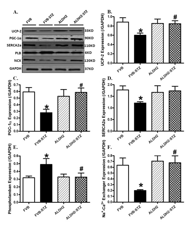 Western blot analysis of the mitochondrial proteins UCP-2 and PGC1α as well as the Ca 2+ regulatory proteins SERCA2a, Na + -Ca 2+ exchanger and phospholamban in myocardium from FVB and ALDH2 mice treated with or without streptozotocin . (A) Representative gel blots of UCP-2, PGC1α, SERCA2a, Na + -Ca 2+ exchanger, phospholamban and GAPDH (loading control) using specific antibodies; (B) UCP-2; (C) PGC1α; (D) SERCA2a; (E) Na + -Ca 2+ exchanger; (F) phospholamban. All proteins were normalized to the loading control GAPDH. Mean ± SEM, n = 5 to 6 mice per group. * P