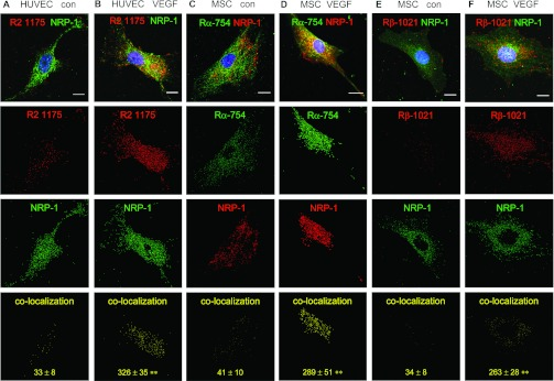 Comparison of VEGF-A-stimulated MSCs and HUVECs The cellular distribution of NRP-1 was examined in MSCs and compared with HUVECs following VEGF-A 165 stimulation. MSCs grown on 0.1% gelatin were cultured for 24 h in serum-free conditions, then co-localization of NRP-1 with either PDGFRα phosphorylated at site Tyr 754 , or PDGFRβ phosphorylated at site Tyr 1021 , was examined by immunofluorescence microscopy. As a comparison, HUVECs grown on 0.1% gelatin were cultured for 4 h in serum-free conditions, then co-localization of NRP-1 with <t>VEGFR2</t> phosphorylated at site Tyr 1175 was similarly determined. ( A ) Control unstimulated HUVEC and ( B ) HUVEC exposed to VEGF-A 165 for 10 min, showing VEGFR2-Tyr 1175 (red) and NRP-1 (green). ( C ) Control unstimulated MSC and ( D ) MSC exposed to VEGF-A 165 for 10 min, showing PDGFRα-Tyr 754 (green) and NRP-1 (red). ( E ) Control unstimulated MSC and ( F ) MSC exposed to 20 ng/ml VEGF-A 165 for 10 min, showing PDGFRβ-Tyr 1021 (red) and NRP-1 (green). Below each image, the corresponding red and green channels which have similar threshold values and the same particle size range are shown, together with their co-localization represented by the image in yellow. The mean number of co-localized particles±S.D. derived from four different single cell images is denoted in yellow. ** P