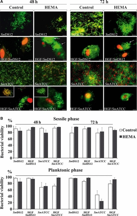 Effect of 3 mM 2-hydroxyethyl methacrylate (HEMA) concentration on the viability of Streptococcus mitis DS12 ( Sm DS12) and S. mitis ATCC 6249 ( Sm ATCC) alone and co-cultured on human gingival fibroblasts (HGFs) after 48 and 72 h of treatment. (A) Representative images of sessile streptococcal strains alone (rows 1 and 3) and co-cultured with HGFs (rows 2 and 4) untreated and treated with HEMA. Arrows indicate the bacterial aggregation on HGFs. Images showed in inserts represent the corresponding planktonic phases in which the HEMA treatment produces a significant increase of bacterial viability with respect to the control (see histograms; B). Live/dead staining, scale bar = 10 μm; (B) percentage of streptococcal viability on sessile and planktonic growth phases, untreated and treated with HEMA.