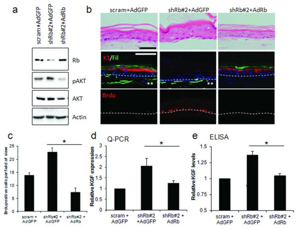Rescue of Rb-depletion by adenoviral re-expression restores differentiation and proliferation defects A) Restoration of Rb protein levels by adenoviral overexpression in shRb#2-fibroblasts. Re-expression of Rb also reduced active AKT levels. B) Immuno-fluorescent detection of keratin-1, filaggrin and Brdu identified that re-expression of Rb restored differentiation and reduced proliferation in the epithelium of organotypic cultures. Brdu incorporation is quantified in C). Scale bars represent 100 μM. D) Q-PCR and E) ELISA detection of KGF following re-expression of Rb. * represents p