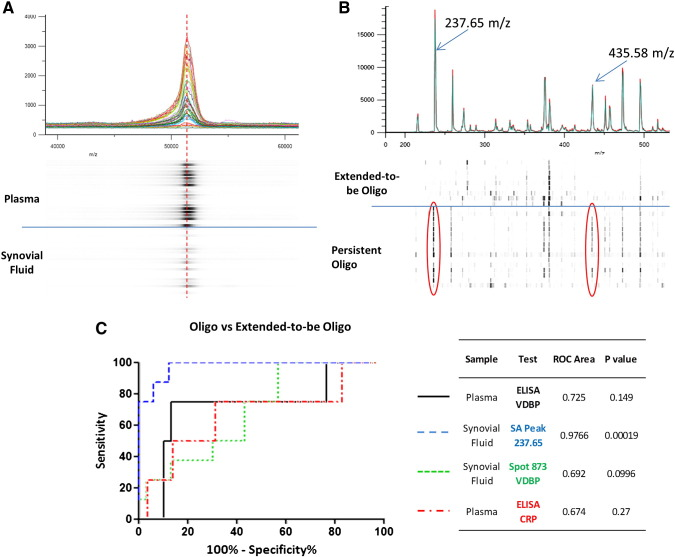 MALDI-TOF mass spectrometry of intact immunopurified VDBP and enzymatically released glycans diagnostic capacity. A. MALDI-TOF mass spectrometry of immunoprecipitated and linearized VDBP from a representative pool of study patients. The peak intensity represented in as an individual 'densitometry' lane below the chart, reflects higher plasma concentrations of VDBP. The majority of intact forms of VDBP from plasma and synovial fluid have a peak mass of 52,900 m / z (represented by the red dashed line). A peak shift towards the right resulting in a 'shoulder' is apparent, indicating higher mass variants or isoforms of VDBP are also present in both fluids. B. MALDI-TOF mass spectrometry of HILIC enriched glycan released by α2-3 neuraminidase digest from immunopurified VDBP from the synovial fluid of oligoarticular patients. Glycan peaks at 237.65 m / z and 435.58 m / z , representing release of sialic acid residues, are indicated by the red encircled bands within individual patient 'densitometry' lanes. There is a significant 72.4 fold difference in the normalized 237.65 m / z peak heights between persistent and extended-to-be oligoarticular patients, signifying few sialic acid modifications detected in the VDBP taken from the latter patients ( p = 0.0014). C. Receiver operator characteristic curves to test the sensitivity and specificity of VDBP (black line) and CRP (red line) ELISA concentration values and DIGE derived normalized volumes for spot 873 (green line) and sialic acid (peak 237.65 m / z ; blue line) released from VDBP to discern patients at risk of disease spread. Area under the curve and p values for each test are also included in the accompanying table.