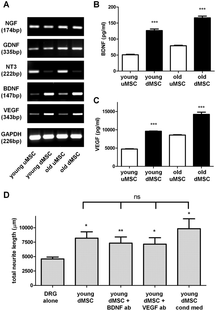 Neurotrophic factor expression in mesenchymal stem cells. ( A ) RT-PCR analysis of neurotrophic factor transcripts NGF, GDNF, NT-3, <t>BDNF,</t> <t>VEGF</t> from undifferentiated MSC (uMSC) and differentiated MSC (dMSC) harvested from young and old donors. Amplicon size is shown in base pairs (bp). ( B and C ) ELISA was used to determine BDNF and VEGF protein levels in cell culture supernatants. ***P