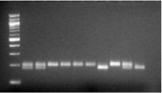 Agarose gel picture illustrating the different <t>A118G</t> genotypes identified by RFLP using the <t>Bst</t> UI restriction enzyme. Column 1 is a 100 bp marker, column 2 shows a sample homozygote for the mutant G118 allele, column 3 shows a sample heterozygote for the A118G SNP and columns 4–8 are samples heterozygous for the wild-type A118 allele