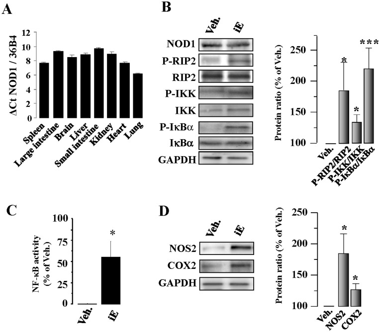 Murine cardiac tissue expresses NOD1. Specific stimulation of NOD1 induces NF-κB pathway activation. (A) Histograms show NOD1 mRNA levels in different mouse tissues. (B) NOD1 protein levels in mouse hearts were analyzed by western-blot. Animals received i.p. 150 µg of iEDAP (iE)/day, a selective agonist of NOD1, or vehicle (Veh.). After 2 weeks of treatment an up-regulation of P-RIP2/RIP2, P-IKK/IKK, P-IκBα/IκBα protein ratio (B), higher p65 binding to κB motifs determined by ELISA (C), and NOS2 and COX2 (D) protein levels were observed in iE treated hearts. NOS2 and COX2 protein values were normalized with GAPDH. Representative blots are shown in the left panels and right panels illustrate the histograms representing the mean (band ratio)±SEM values vs. Veh. (100%); n = 4–6 animals. *p