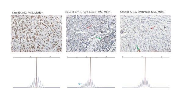 Outcome of MSI and <t>IHC</t> analyses in three breast tumors from MLH1 mutation carriers . Left , MLH1 expressing, MSS breast carcinoma from individual 3:60 (Table 2). Middle , ductal carcinoma from the right breast from individual 77:15, displaying MLH1 protein loss and MSI. Right , lobular carcinoma from the left breast of the same patient, showing MLH1 protein loss and stable microsatellites. Red arrow in IHC stainings denotes lack of expression in tumor cells and green arrow positive expression in normal cells. MSI results are based on BAT25. IHC, immunohistory; MSI, microsatellite instability; MSS, microsatellite stable.