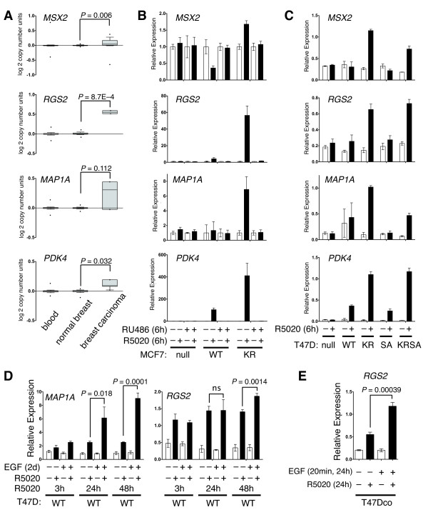 Phosphorylation of PR Ser294 drives SUMO-deficient PR gene expression and promoter selectivity in MCF-7 and T47D cells . ( A ) Relative expression level (copy number) of PR target genes in breast cancer patient cohorts. ( B ) Relative gene expression levels of selected PR target genes in MCF-7 cells stably expressing either empty vector (PR-null), WT or SUMO-deficient K388R PRs. Cells were co-treated with progestin R5020 and/or antiprogestin RU486 for six hours and mRNA levels were measured using RT-qPCR (see Materials and methods). ( C ) Relative gene expression levels of the same PR target genes (as in parts A-B) were measured using RT-qPCR in five vector-matched T47D cell lines stably expressing PRs: empty vector (null), wild-type (WT) PR, K388R mutant (KR) PR, S294A mutant (SA) PR, and K388R and S294A double mutant (KRSA) PR. Cells were treated with R5020 for six hours. ( D ) T47D cells expressing WT PR were treated cells with epidermal growth factor (EGF) for two days and treated with R5020 for 3, 24, or 48 hours. Relative MAP1A and RGS2 mRNA levels were measured using RT-qPCR. ( E ) Parental T47Dco cells were pretreated with EGF for 20 minutes prior to 24 hours of R5020 treatment. Relative RGS2 mRNA levels were measured by RT-qPCR. Data are represented as mean of n = 3 +/- SD and significance calculated using Student's t-test. n, number; PR, progesterone receptor; SD, standard deviation; SUMO, small ubiquitin-like modifier; WT, wild type.