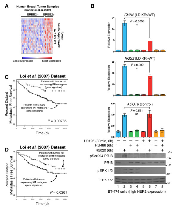 The SUMO-deficient PR gene expression signature is associated with HER2-positive human breast tumors and predicts reduced patient survival . ( A ) Normalized gene expression levels (for genes in our LD KR > WT gene signature) are presented for each tumor in the patient cohort [ 64 ], organized by ERBB2 status. ( B ) Gene expression levels were measured by RT-qPCR for CHN2 and RGS2 (both upregulated by SUMO-deficient PR, and members of the LD KR > WT gene signature) and the control gene ACOT6 (equally upregulated by both WT and KR receptors) in BT-474 human breast cancer cells. Cells were pre-treated with MEK kinase inhibitor U0126 prior to progestin or antiprogestin co-treatment. Protein levels were evaluated by western blotting for total PR, PR Ser294 phosphorylation, total ERK1/2, and ERK1/2 phosphorylation. ( C ) Kaplan-Meier survival curve for distant metastasis free survival for patients whose tumors expressed the combined T47D metagenes (WT or KR, -/+R5020) relative to patient tumors lacking these metagenes. Patient samples include untreated and tamoxifen-treated ER-positive tumors from the Loi et al. dataset [ 29 ]. ( D ) Survival curves as in part C for patients whose tumors expressed the combined T47D metagenes (KR -R5020, or KR +R5020) relative to patient tumors lacking these metagenes. [See also Additional files 4 and 9 ]. ER, estrogen receptor; KR, K388R PR-B mutant; LD, ligand dependent; SUMO, small ubiquitin-like modifier; WT, wild type.