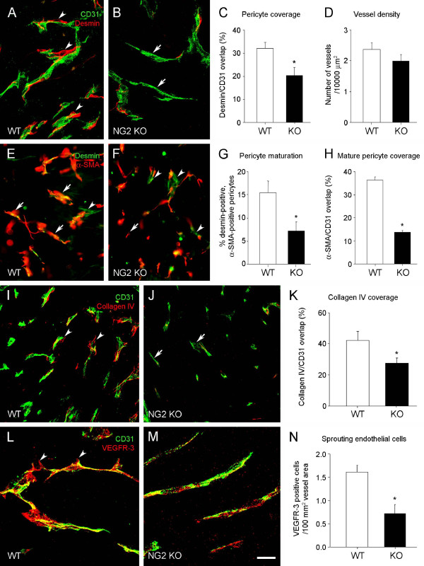 Structural deficits of vessels in mammary tumors in NG2 null mice . Py8119 fat pad tumors (2-3 mm diameter) in wild type (WT) and NG2 null (NG2 KO) recipients were used to evaluate several types of structural deficits in tumor vessels due to ablation of NG2. A-C . Pericyte coverage of endothelial cells was evaluated in wild type (A) and NG2 null (B) tissue sections immunostained for desmin (red) and CD31 (green). Since desmin and CD31 are on distinct cell types, they cannot overlap in a single optical section. However, because of the intimate interaction between pericytes and endothelial cells, the two labels appear to overlap when viewed in three-dimensional space. Analysis of confocal z-stacks therefore allows quantification of the extent to which desmin appears to overlap with CD31 labeling. Arrowheads in A indicate areas of overlap between desmin and CD31. Arrows in B show vessel segments without pericyte coverage. The extent to which CD31 pixels are overlapped by desmin pixels provides a measure of pericyte ensheathment of endothelial cells (C). Data were collected from eight tumors per genotype, evaluating four sections per tumor. D . Vascular densities are not significantly different in Py8119 tumors in wild type and NG2 null mice, as quantified by counting CD31-positive vessels in a 10,000 μm 2 area. Data were collected from eight tumors per genotype, evaluating four sections per tumor. E-G . Pericyte maturation was evaluated via double immunostaining for desmin (green, all pericytes) and αSMA (red, mature pericytes). Mature pericytes express both desmin and αSMA (arrows), while immature pericytes express only desmin (arrowheads). Pericyte maturation is calculated as the % of desmin-positive pericytes that are αSMA-positive (G). Data were collected from four tumors per genotype, evaluating three sections per tumor. H . Endothelial ensheathment by mature pericytes was quantified by double immunostaining for CD31 and αSMA. Because the number of mature pericyte