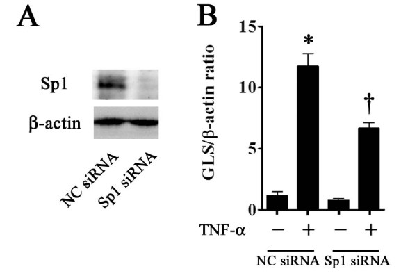 Effect of Sp1 RNA interference on gliostatin (GLS) expression . Western blotting analysis shows that Sp1 small interfering RNA (siRNA) (20 nM) transfection for 48 hours strikingly blocked Sp1 expression compared with negative control (NC) siRNA (20 nM) transfection (A) . After Sp1 or NC siRNA transfection for 24 hours, cells were treated with tumor necrosis factor-alpha (TNF-α) (1 ng/mL) for 24 hours. GLS mRNA expression levels are presented as mean ± standard error of the mean of five determinations (B) . GLS mRNA levels are represented relative to β-actin. Statistical significance was calculated by using the Mann-Whitney U test: compared with NC siRNA samples * P