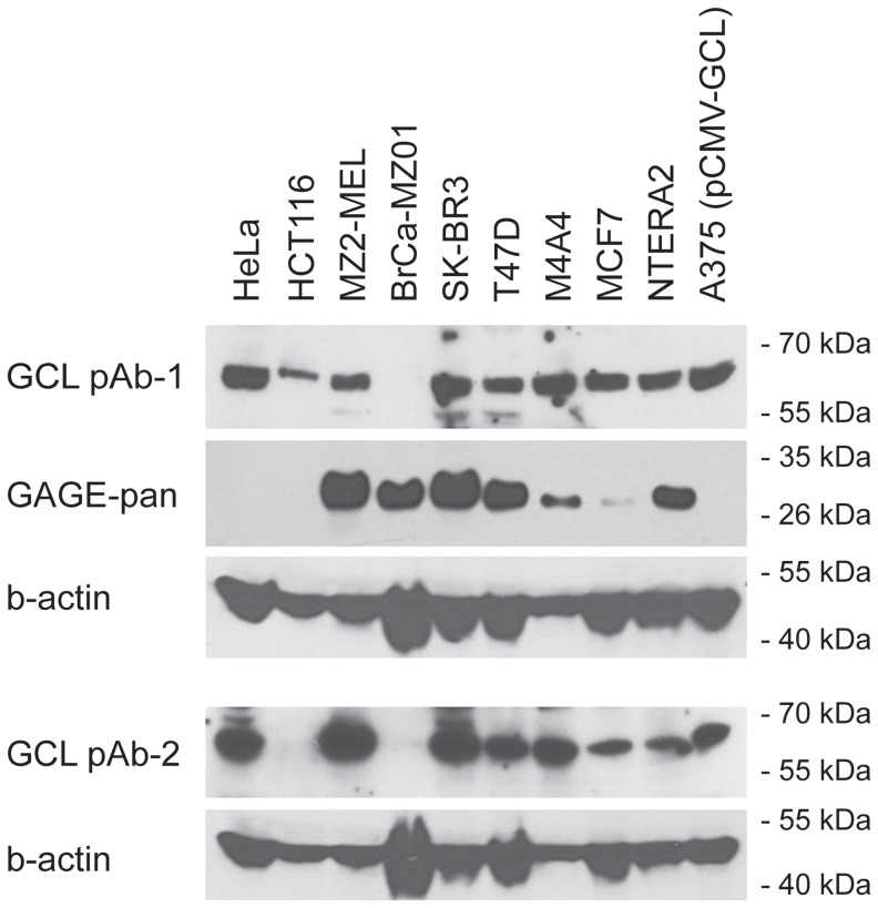 GCL and GAGE proteins are co-expressed in human cancer cells lines. GCL and GAGE protein expression was examined in 9 human cancer cells lines derived from cervix (HeLa), colon (HCT116), melanoma (MZ2-MEL), breast (BrCa-MZ01, SK-BR3, T47D, M4A4, MCF7) and embryonic cancer (NTERA2) using Western blotting. A375 melanoma cells with exogenous expression of GCL were included as positive control. Antibodies: GCL pAb1, Sigma Aldrich; GCL pAb2, clone A14, Santa Cruz Biotech; GAGE mAb, clone M3 [4] , <t>beta-actin</t> mAb, Ab6276; Abcam.