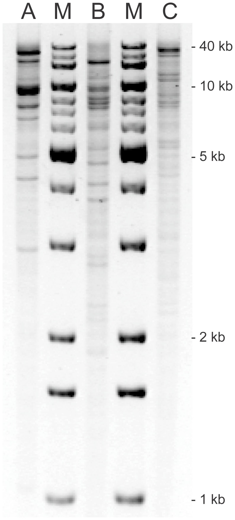 HpaI plasmid profiles of bla CTX-M-94 -, bla CMY-2 - and bla CTX-M-100 -harbouring plasmids. A 0.7% agarose gel was loaded with HpaI restricted plasmid DNA purified from three recombinant E. coli TOP10 strains containing the (A) bla CTX-M-94 -, (B) bla CMY-2 - and (C) bla CTX-M-100 -harbouring plasmids, respectively, and stained with GelRed. Relative mobility calculations, based on known band sizes of the 1 Kb DNA Extension Ladder (M), estimated total plasmid sizes to be (A) 93 kb, (B) 98 kb and (C) 130 kb.