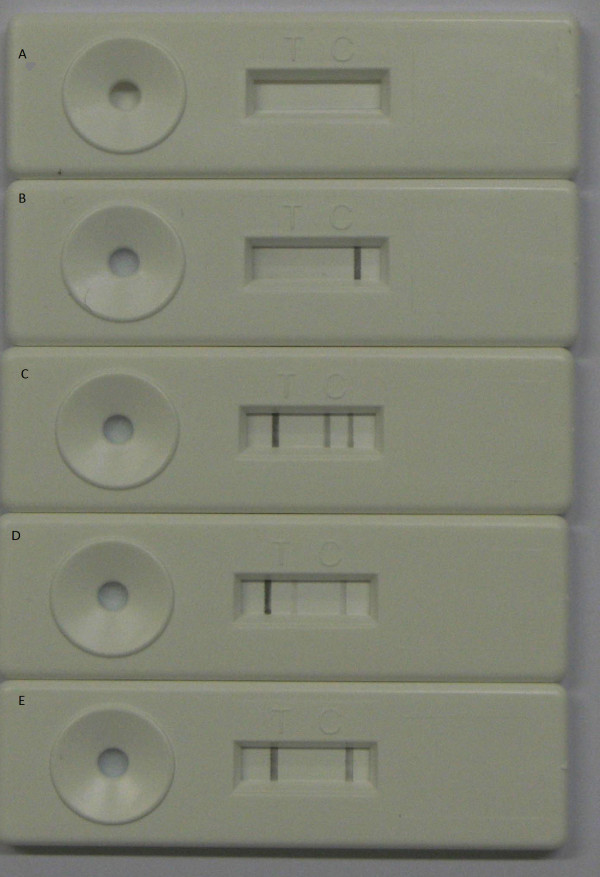 Examples of the different test outcomes of the PCR-NALFIA. a ) No control and no test line are visible. This is a test failure but can also be seen when only water is amplified (negative control) b ) A positive control line and a negative test line are visible indicating that the test is valid but that no parasite DNA is detected c ) Next to the control a Plasmodium line and a specific line for P. falciparum is present indicating a P. falciparum infection d ) Next to the control and Plasmodium line the specific line for P. vivax is visible indicating a P. vivax infection. e ) Both a positive control and a positive test line for Plasmodium are visible indicating a valid test positive for Plasmodium but negative for P. falciparum and P. vivax .