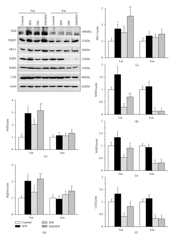 SFN upregulated renal expression of Nrf2 and its downstream genes at protein level. Nrf2 (a) and its downstream genes, NQO1 (b), HO-1 (c), SOD1 (d), SOD2 (e), and CAT (f) expression in protein level was detected by Western blotting assay. Data were presented as means ± SD ( n = 6 at least). (* P