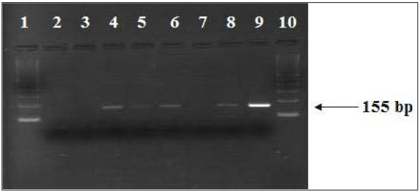 Detection of Coxsackie B enterovirus RNA by RT-PCR in post-mortem myocardial samples from Sudden Unexpected Death victims (1 and 10: molecular size marker 100-bp DNA ladder; 2: Negative control RNA extraction; 3: Negative control RT-PCR mixture; 4 to 6 and 8: Samples from coxsackie B enterovirus-positive cases; 7: Samples from a coxsackie B enterovirus-negative case; 9: A positive control; coxsackievirus B3: 155 bp).
