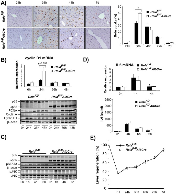 Hepatocyte-specific inactivation of RelA/p65 results in accelerated cell cycle progression without altering liver mass regeneration after 2/3 PH. ( A–E ) 2/3 PH was performed in Rela F/F AlbCre and Rela F/F control animals. ( A ) DNA synthesis was assessed by hepatocyte BrdU labelling at the indicated time points and quantified as described in Methods (representative×200 anti-BrdU stained liver sections are shown in the left panel, n = 4−8 animals per time point and group were counted for quantification, right panel). ( B ) Accelerated cell cycle progression in Rela F/F AlbCre mice as determined by mRNA levels of Cyclin D1 24 h post PH (upper panel) and WB analysis of cell-cycle associated proteins (PCNA, Cyclin A, Cyclin D1). Lysates were controlled for effective deletion of WT-RelA/p65 and β-actin served as loading control. Two representative lysates from each time point post PH are shown. ( C ) Loss of hepatocyte RelA/p65 leads to enhanced phosphorylation of STAT3 and JNK during the first hours after PH as assessed by immunoblot analysis (upper panels). ( D ) Liver IL-6 mRNA induction as determined by RT-PCR (upper graph) and IL-6 serum levels (ELISA, lower graph) were not different between groups. ( E ) Liver mass regeneration (%) determined as described in Methods did not differ between the groups. Data from BrdU-labelling, cytokine analysis, RT-PCR, and analysis of liver mass regeneration are presented as the average ± SEM for 3–6 animals per time point per group. *, p≤0.05 for mutant vs. control mice.