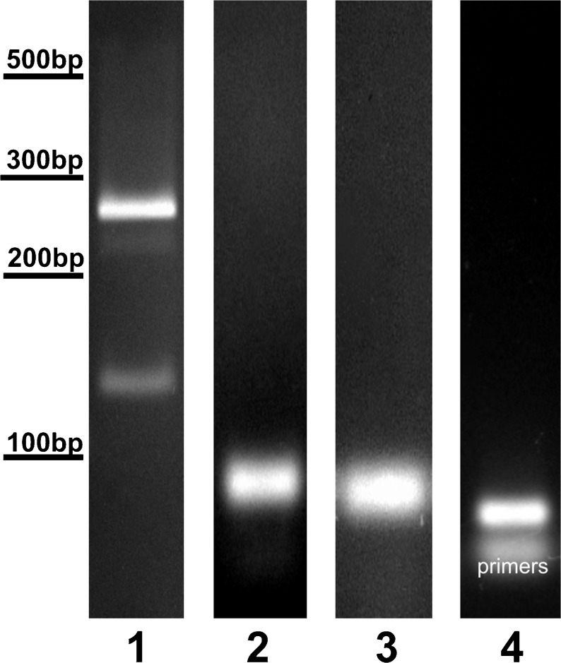 Representative photographs of RT-PCR products. Two isoforms of VEGF-A ( line 1 ) were found in choroid plexus samples, VEGF-A 164 (275 bp) and VEGF-A 120 (125 bp). Single transcripts for Flt-1 (68 bp) ( line 2 ), KDR (145 bp) ( line 3 ) and NRP-1 (60 bp) ( line 4 ) were observed