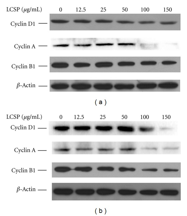 Immunoblots of cell cycle-controlling proteins in LCSP-treated CRC cells. Cells were treated with increasing concentrations of LCSP as indicated and then incubated at 37°C for 24 h. Cell protein lysates from Colo320DM (a) and SW480 (b) cells were separated by <t>SDS-PAGE,</t> transferred to <t>PVDF</t> membranes, and immunoblotted to show cyclin D1, cyclin A, and cyclin B1 levels, and the beta-actin level as a loading control.