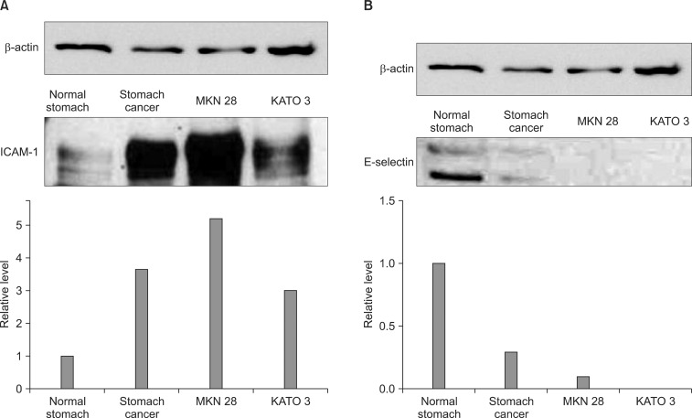 Intercellular adhesion molecule-1 (ICAM-1), E-selectin expression level in gastric cancer tissues and cell lines (MKN28, KATO3). (A) CAM-1 expression was noted in normal stomach tissues but it was increased in gastric cancer tissues and cultured gastric cancer cells. (B) E-selectin expression was more prominent in normal stomach tissues but it was decreased in gastric cancer tissues and cultured gastric cancer cells.