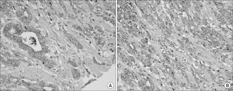 Immunohistochemical staining of intercellular adhesion molecule-1 (ICAM-1), E-selectin in tissue microarray slides of gastric cancer. (A) Expression of ICAM-1 was noted in the endothelial cells of gastric cancer tissues. More than 50% of cancer cells were stained (×400). (B) Expression of E-selectin was noted in the diffuse type signet ring gastric cancer cells. More than 50% were stained (×400).