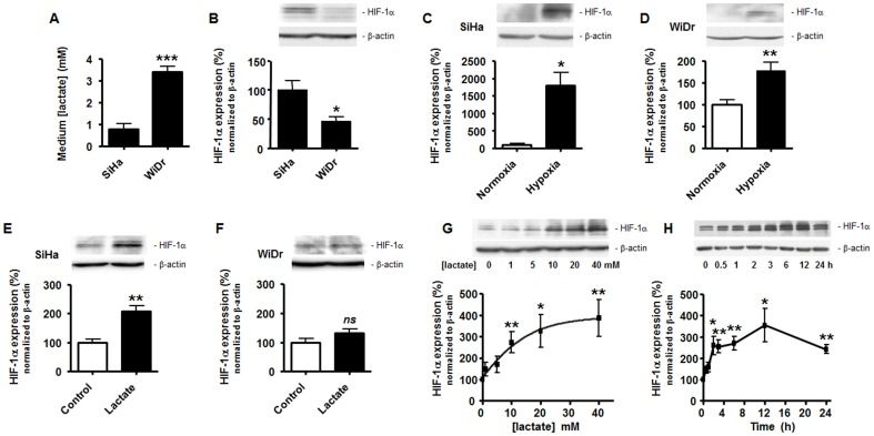 Lactate induces normoxic HIF-1α protein stabilization in oxidative tumor cells, not in Warburg tumor cells. (A) Lactate release in the supernatant of SiHa and WiDr TCs was measured using a CMA600 enzymatic analyzer after 24-h of culture in fresh medium. *** p = 0.0002; n = 4. (B–G) HIF-1α and β-actin protein expression was detected using Western blotting in the lysates of oxidative SiHa or Warburg WiDr TCs. The upper panels show representative experiments and the graphs HIF-1α protein expression normalized to β-actin levels. (B) SiHa and WiDr cells were untreated to detect basal HIF-1α protein expression. * p = 0.0414; n = 3–4. (C) SiHa TCs were cultured during 24-h under hypoxia (1% O 2 ) or not. * p = 0.011; n = 3. (D) As in (C) but with WiDr TCs. ** p = 0.0057; n = 5. (E) SiHa TCs were cultured during 24-h in the presence of 10 mM lactate or not. ** p = 0.0029; n = 4. (F) As in (E) but with WiDr TCs. ns , p = 0.1449; n = 8. (G) SiHa TCs were exposed to increasing doses of lactate during 24-h. * p