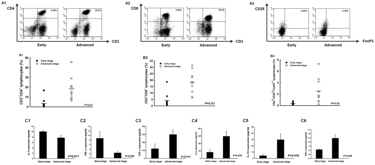 Different expressions of immune components in ascites of early- and advanced-stage ovarian cancer patients. ( A ) Representative figures of flow cytometric analyses of CD4 + helper T cells, CD8 + cytotoxic T lymphocytes, and CD4 + CD25 + regulatory T lymphocytes (Treg cells) in TAL. A1, CD4 + helper T cells; A2, CD8 + cytotoxic T lymphocytes; A3, CD4 + CD25 + Treg cells. ( B ) Percentages of CD4 + helper T lymphocytes, CD8 + cytotoxic T lymphocytes, and CD4 + CD25 + regulatory T lymphocytes (Treg cells) in TAL. B1, CD4 + helper T cells; B2, CD8 + cytotoxic T lymphocytes; B3, CD4 + CD25 + Treg cells. Note : The percentages of CD4 + T cells were significantly higher in patients with advanced stage ovarian cancer. ( C ) Concentrations of various cytokines in ascites of ovarian cancer patients. C1, IL-4; C2, TNF-α; C3, TGF-β; C4, IL-6; C5, IL-10; C6, IFN-γ. Note : The IL-4 and TNF-α concentrations decreased while the TGF-β, IL-6, IL-10, and IFN-γ concentrations increased from early to advanced stage.