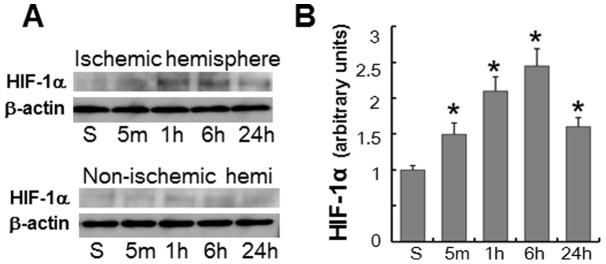 HIF-1α accumulation after focal brain ischemia. (A) Western blot analysis of HIF-1α in the ischemic and non-ischemic hemispheres of mice subjected to MCAO followed by reperfusion. (B) Densitometric analysis of HIF-1α protein levels in the ischemic hemispheres. Data were normalized relative to β-actin levels, and the values obtained from sham-operated controls (S) were arbitrarily defined as 1. * P