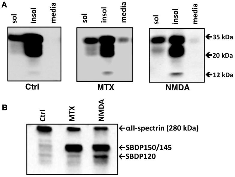 Release of full-length PrP C into culture media from RtCNC challenged with neurotoxins MTX and NMDA . RtCNC were either untreated (control; Ctrl) or challenged with MTX or NMDA. (A) Soluble and insoluble cell fractions and conditioned cell culture media were analyzed by SDS-PAGE followed by western blotting and immunostaining with Mab D8. (B) Soluble cell fractions were also analyzed with anti-αll spectrin Mab to probe the formation of SBDPs (SBDP150 by calpain and SBDP120 by caspase-3). Blots are representative of four separate experiments.