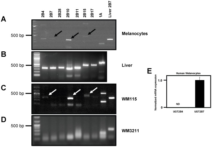 UGT mRNA expression in primary human melanocytes and melanoma. (A) RT-PCR analysis of total RNA from human melanocytes for UGT family members. Primer sets for the UGT2Bs were designed to be specific to each isoform while a single primer set directed against the common region of all UGT1As was used to detect UGT1A expression. Total RNA from human liver was used as a control with UGT2B7 primers. Arrows indicate DNA bands of expected size whose sequence was confirmed. (B) Control RT-PCR analysis of total RNA from liver using indicated primers sets. (C) RT-PCR analysis of total RNA from the human melanoma cell line WM115 using indicated primers sets. Arrows indicate bands that were excised and sequenced. Band in UGT2B4 lane was found to be UGT2B7 by sequencing while UGT2B10 and UGT2B15 bands were confirmed to be expected UGTs. (D) RT-PCR analysis of total RNA from the human melanoma cell line WM3211. GAPDH was used as a positive control here to ensure cDNA quality. (E) Real-time PCR using TaqMan assays against indicated UGTs. ND = not detected.