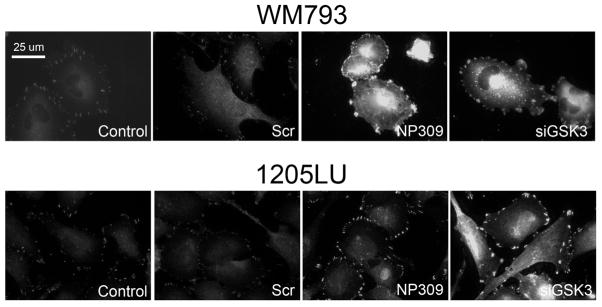 GSK3β regulates focal adhesions in melanoma cells Inhibition of GSK3β and siRNA knockdown of GSK3β increases the size of focal adhesions in WM793 and 1205Lu melanoma cells. Doxycycline-inducible EGFP-FAK expressing WM793 and parental 1205Lu cells were treated with vehicle (control), scrambled siRNA control (Scr), NP309 (0.3 μM) or an siRNA against GSK3β. WM793 were imaged directly, and 1205Lu cells were fixed and stained for FAK expression. Scale bar: 25 μm.