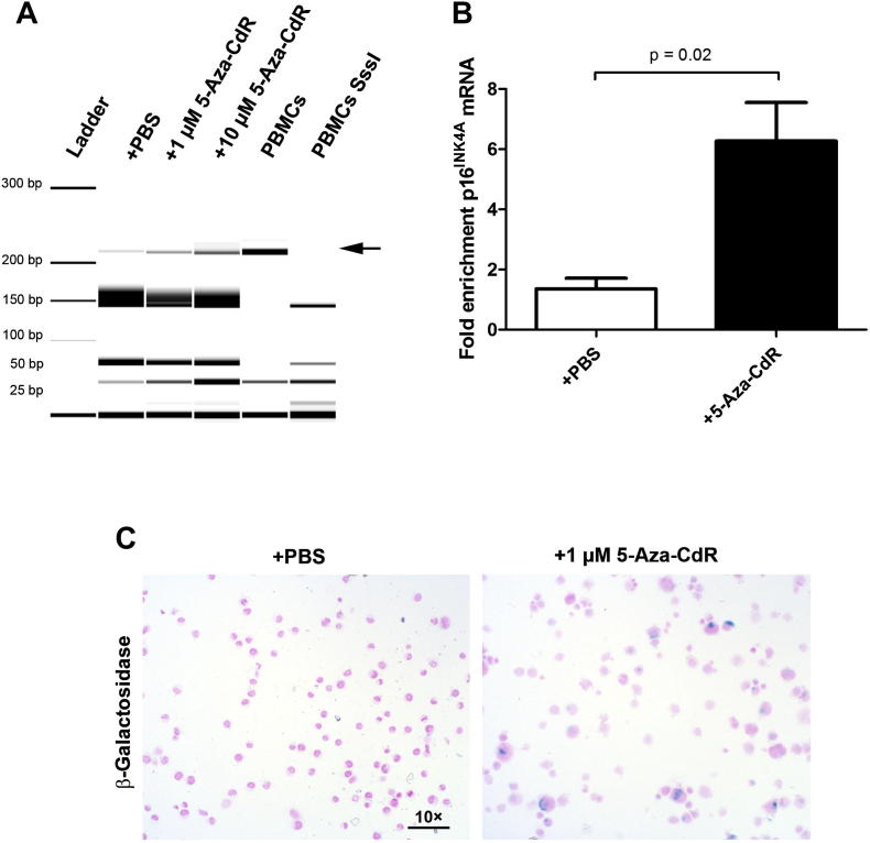 5-Aza-CdR treatment leads to demethylation and re-expression of the tumor suppressor p16 INK4A and induces cellular senescence. A. p16 INK4A promoter methylation decreases upon treatment with increasing 5-aza-CdR concentrations. 1 × 10 6 KARPAS-299 cells were incubated with 0, 1 and 10 μM of 5-aza-CdR, the medium was changed after 24 h and then cells were grown for 4 days. DNA was extracted from cells and bisulfite converted and Combined Bisulfite Restriction Analysis (COBRA) was performed to analyse the methylation status of the p16 INK4A promoter as described in materials and methods. Restriction fragments were analysed using the Agilent 2100 Bioanalyzer platform. Note the dose-dependent increase of the unmethylated fragment at 220 bp indicated by the arrow. B. p16 INK4A mRNA increases in the 5-aza-CdR treated cell line KARPAS-299 compared to mock treated controls. RNA was isolated from 1 μM 5-aza-CdR treated KARPAS-299 cells as described in A. p16 INK4A expression was analysed by quantitative RT–PCR. Values are means ± SEM. Each value is the mean of three replicates. Data were analysed by unpaired t -tests. C. Senescent cells accumulate upon 5-aza-CdR treatment. 5-Aza-CdR treated KARPAS-299 and control cells were stained for β-galactosidase activity and counterstained with nuclear fast red. Note the abnormal enlarged shape of 5-aza-CdR treated cells.