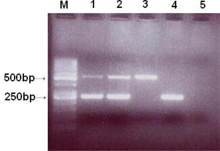 Amplicons electrophoretic results of Exon 1–5 (exon 1, 2 and 3 in separate tubes and exon 4, 5 in same tube). Here only exon 4 and 5 depicted. M) marker 50bp, 1, 2) two normal samples with both exon 4, 5 HEXB and internal control primers, 3) normal sample with primers for exon 4, 5, 4) proband's PCR product with both inernal and exon 4,5 primers, 5) proband's PCR product with only exon 4, 5 primers