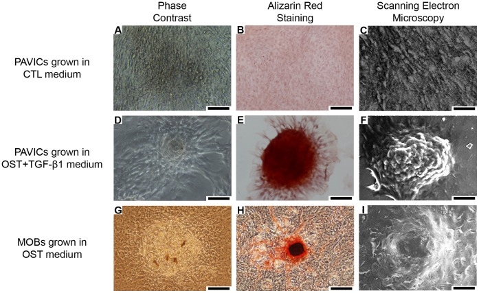 Micrographs showing the morphology and staining of PAVICs and MOBs in culture. A,D,G - Phase contrast images of cultured PAVICs grown in CTL medium for 21 days, PAVICs grown in OST+TGF-β1 medium for 21 days, and MOBs grown in OST medium for 21 days respectively (scale = 100 µm). B,E,H - Alizarin Red S staining negative for PAVICs grown in CTL medium for 21 days, positive for PAVICs grown in OST+TGF-β1 medium for 21 days, and positive for MOBs grown in OST medium respectively (scale = 100 µm). C,F,I - SEM images of cultured PAVICs grown in CTL medium for 21 days, PAVICs grown in OST+TGF-β1 medium for 21 days, and MOBs grown in OST medium for 21 days respectively (scale = 50 µm).