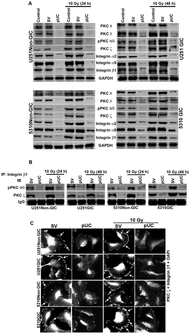 Effect of pUC and radiation alone and in combination on PKC and integrin levels in U251 and 5310 non-GICs and GICs. A, Western blot analysis of the cell lysates of U251 and 5310 non-GICs and GICs showing the protein expression levels of PKC θ, PKC δ, pPKC θ/δ, PKC ζ, integrin β1, integrin α2, and integrin α5 after treatment with pUC and radiation alone or in combination. B, Total protein (300 μ g) was collected from pSV, pUC, pSV + 10 Gy and pUC + 10 Gy samples of U251 and 5310 non-GICs and GICs and immunoprecipitated with integrin β1 antibody (2 μ g) and protein A plus G agarose beads (20 μ g) overnight at 4°C. The precipitates were washed with lysis buffer and the integrin β1 pulled down protein was immunoblotted for pPKC θ/δ and PKC ζ. C, Co-localization of PKC ζ and integrin β1 was carried out with pSV and pUC with and without 10 Gy (24 h for non-GICs and 48 h for GICs). The cells were allowed to migrate on 4-well chamber slides for about 16 h after growing them in Ibidi culture inserts for 24 h after treatments. The cells were fixed, stained with primary antibody overnight at 4°C, counter-stained with species-specific Alexa Fluor-conjugated secondary antibodies, nuclear stained with DAPI, mounted, and imaged under a confocal microscope. Arrows indicating the co-localization of PKC ζ and integrin β1.