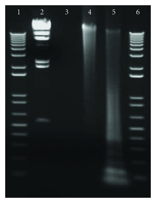1% agarose gel loaded with B. anthracis <t>DNA</t> before and after amplification using REPLI-g genomic DNA amplification kit and <t>RsaI</t> digestion. Lanes 1 and 6, : 1 kb molecular weight markers, lane 2: Hind III molecular weight marker (23130, 9416, 6557, 4361, 2322, 2027, and 546 bp), lane 3, : 5 μ L of 20 ng/ μ L B. anthracis Ba 179 genomic DNA, lane 4, : 5 μ L of REPLI-g amplified DNA (355 ng/ μ L), and lane 5: RsaI digested DNA.