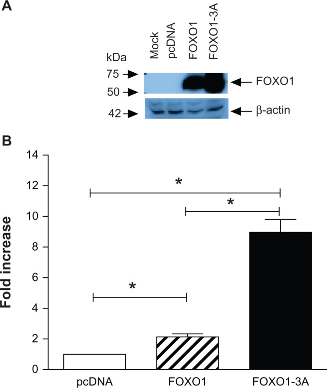 Constitutive active FOXO1 up-regulates endogenous human Sell expression. Jurkat cells were transiently transfected with pcDNA3 (white bar), pcDNA3-FOXO1 (striped bar), or pcDNA3-FOXO1-3A (solid bar) for 30 hours. Of the two sets of transfected cells, one set was lysed with SDS buffer and equal amount of lysate from each treatment was analyzed for expression of FOXO1 by Western blot, where β-actin was used as loading control ( A ); the other set was used to analyze the expression of human Sell by real time PCR, which was normalized to that of GAPDH ( B ). Notes: Data were presented as mean ± SD of at least three independent experiments in triplicate on each transfection. Data were graphed as fold increase relative to that of pcDNA3 transfected Jurkat cells, which was set as 1.