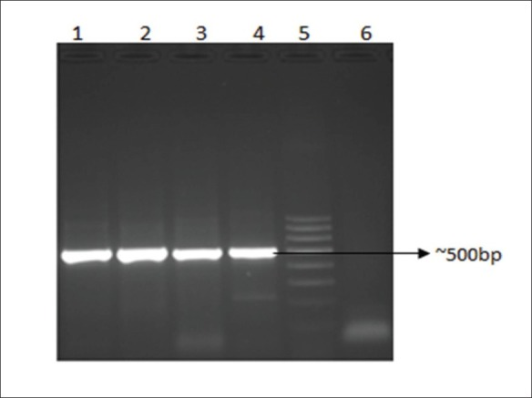 PCR for the ITS2 region of root DNA samples of family Asparagaceae ( Asparagus recemosus and Asparagus gonoclados ) and Asclepiadaceae ( Hemidesmus indicus and Decalepis hamiltonii ) Detection of the ITS2 region of ~500 bp PCR product on a 1.5% agarose gel. Lane 1. Asparagus racemosus , Lane 2. Asparagus gonoclados , Lane 3. Hemidesmus indicus , Lane 4. Decalepis hamiltonii , Lane 5.100 bp ladder, Lane 6. Negative control