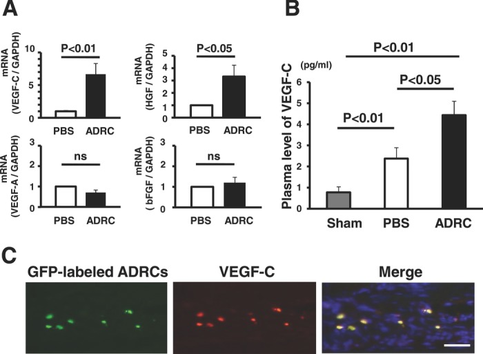 Implantation of ADRCs and lymphangiogenic cytokines in vivo. A, The abundance of VEGF‐C and HGF mRNA in the ADRC group was significantly greater than that of the control group by real‐time reverse transcriptase–polymerase chain reaction (VEGF‐C: 6.7‐fold, n=5, P