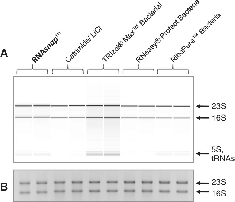 Quality assessment of RNA samples isolated by each method. ( A ) A representative composite <t>bioanalyzer</t> digital gel image using two technical replicates of each of the RNA extraction method tested (see 'Materials and Methods' section). ( B ) A representative composite image of technical replicates of 250 ng of total RNA (based on A 260 ) from each RNA extraction method electrophoresed on a 1.2% agarose–0.5× TBE gel and stained with ethidium bromide.
