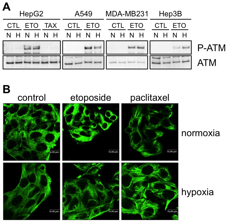 Effects of hypoxia on drug-induced damage. (A) Effect of hypoxia, etoposide and paclitaxel on the abundance and phosphorylation of ATM. HepG2, A549, MDA-MB231 and Hep3B cells were incubated 1 hour under normoxia (N, 21% O 2 ) or hypoxia (H, 1% O 2 ) in the presence or not (CTL) of etoposide (ETO, 100 µM in Hep3B cells and 50 µM in the other cell types) or paclitaxel (TAX, 10 µM) in HepG2 cells. ATM and P-ATM were detected in nuclear protein extracts by western blotting using specific antibodies. One experiment representative out of three. Uncropped western blots are presented in Figure S1 . (B) Effect of hypoxia, etoposide and paclitaxel on microtubules. HepG2 cells were incubated 16 hours under normoxia (21% O 2 ) or hypoxia (1% O 2 ) in the presence or not of etoposide (50 µM) or paclitaxel (10 µM). After the incubation, cells were fixed, permeabilised and stained for alpha-tubulin using a specific antibody. Observation was performed using a confocal microscope with a constant photomultiplier.