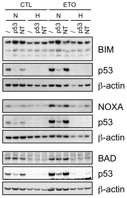 Effect of p53 silencing on the expression of BIM, NOXA and BAD. HepG2 cells were transfected with 50 nM p53 siRNA (p53) or non-targeting control siRNA (NT) or left untransfected (/) for 24 hours. Minimum 6 hours later, cells were incubated under normoxia (N, 21% O 2 ) or hypoxia (H, 1% O 2 ) with (ETO) or without (CTL) etoposide (50 µM) for 16 hours. Proteins were detected in total cell extracts by western blotting, using specific antibodies. ß-actin was used as loading control. One experiment representative out of three. Uncropped western blots are presented in Figure S1 .