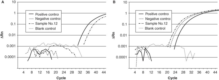 An original amplification plot of real-time PCR in case no. 12 with positive CMV DNA. CMV DNA in positive control and case 12 (A) and genomic DNA (GJB2 gene) in positive control, case no. 12 and negative control (B) are amplified. These results show that our real-time PCR method is precise. Blank, sample without any added DNA.