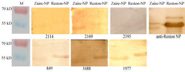 Western-blot analysis of ELISA positive serum samples with recombinant Reston-NP and Zaire-NP expressed in E. coli . The polyclonal antibody against the full-length nucleocapsid protein of RESTV was used as positive control. Sample no. 2195 was ELISA negative and used as negative control. The other 5 samples were western blot positive. Note: western blot no.1487, 1552, 1689, 1973 and 2166 is not presented due to the absence of signal in the scanned photograph.