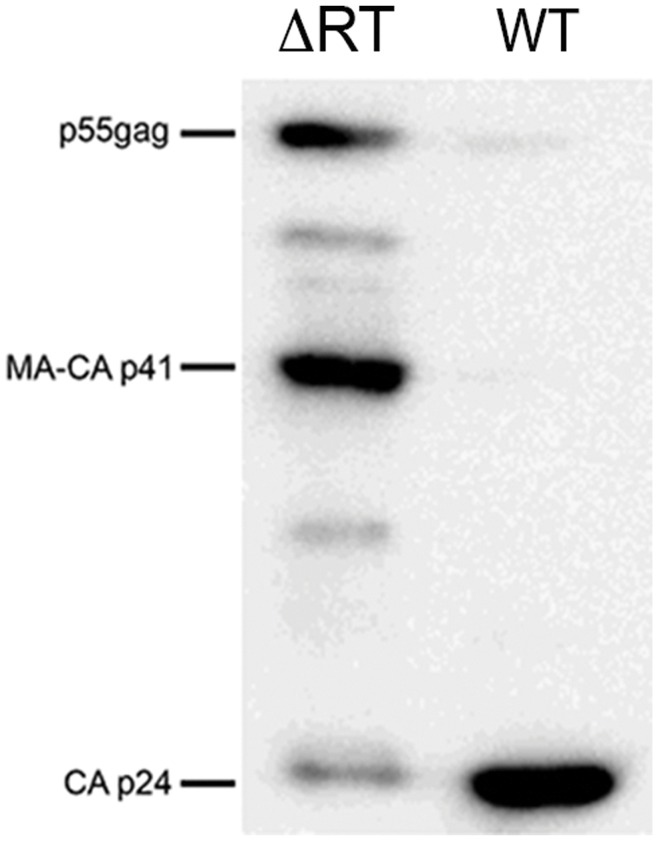 Protein profile of NL4-3 and NL4-3/ΔRT virions. Virions purified by ultracentrifugation were used to extract proteins and separated in a gradient 4-12% <t>Tris-Glycine</t> gel. An <t>anti-p24</t> monoclonal antibody was used to study the processing profile of Gag in NL4-3/ΔRT and NL4-3 virions. There is a weaker processing of Gag in NL4-3/ΔRT virions, represented by an increase in p55- gag and MA-CA p41 forms in detriment of CA p24. At the same, an increase in intermediate forms is also shown in NL4-3/ΔRT virions.