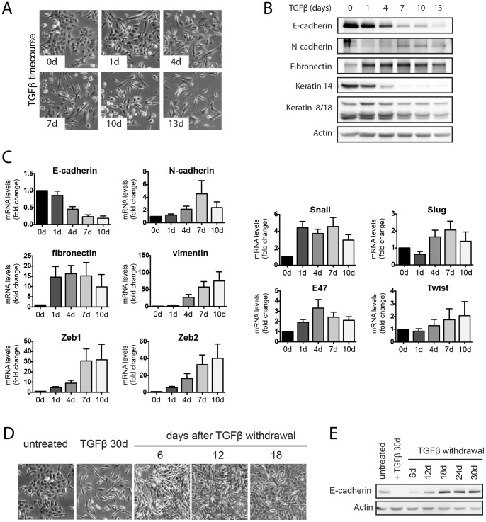 Kinetics and reversibility of TGFβ-induced EMT in Py2T cells. ( A ) Morphological changes of Py2T cells during a time-course of TGFβ-treatment. Cells were cultured in growth medium containing TGFβ (2 ng/ml) and phase-contrast microscopy pictures were taken at the indicated times. ( B ) Immunoblotting analysis of lysates prepared from Py2T cells treated as in (A). The expression of epithelial (E-cadherin), mesenchymal (N-cadherin, fibronectin), luminal (CK8/18) and basal (CK14) markers was analyzed. ( C ) Changes in the expression of EMT markers during TGFβ-induced EMT of Py2T cells. Py2T cells were treated for 10 days with TGFβ as described in (A). RNA was extracted at the indicated time points of TGFβ-treatment and quantitative RT-PCR was performed with primers specific for the EMT markers indicated. Expression levels are shown as mean fold difference of untreated cells (0d) ± S.E.M of 5 independent experiments. ( D–E ) Reversibility of TGFβ-induced EMT. Py2T cells were treated with TGFβ for 30 days to induce EMT and were then further cultured without TGFβ for additional 30 days. Phase-contrast microscopy images were taken at the indicated time points (E). E-cadherin expression levels were analyzed throughout the experiment by immunoblotting (F).