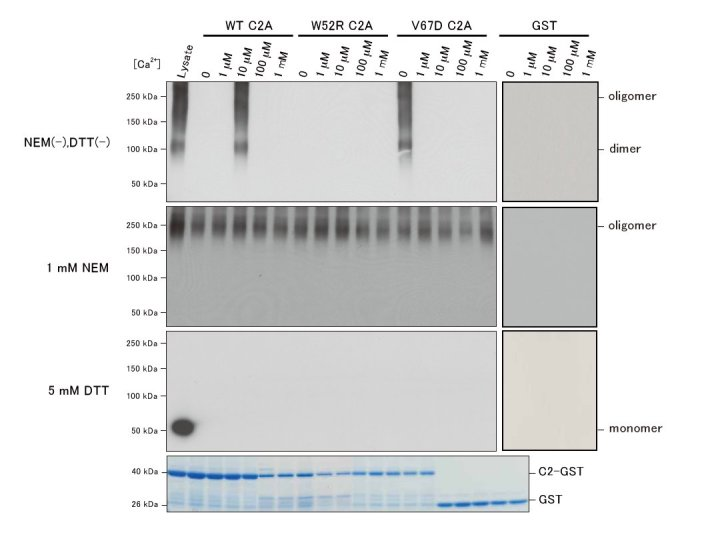 COS-7 cells overexpressing FLAG-tagged MG53 were lysed and supplemented with DTT or NEM, and proteins in these lysates were cross-linked with GA. Cross-linked proteins were incubated with glutathione Sepharose 4B beads bound to wild-type C2A-GST, V67D C2A-GST, or GST. GST fusion proteins bound to beads were separated by SDS-PAGE, followed by Coomassie Brilliant Blue R-250-staining. Precipitated MG53 oligomers/monomers were detected on immunoblots using an anti-FLAG antibody. Mutations in the C2A domain affect the association of between dysferlin and MG53.