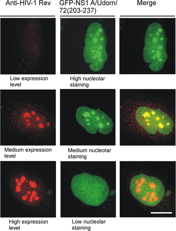 Chimeric GFP-NS1 A/Udorn/72/(203–237) colocalizes with HIV-1 Rev protein in the nucleolus, and a high expression level of HIV-1 Rev protein totally displaced the GFP-NS1(203–237) fusion protein from the nucleoli to the nucleus. HuH7 cells were grown on coverslips for 24 h and then transiently transfected with HIV-1 Rev and chimeric GFP-NS1 A/Udorn/72/(203–237) gene constructs for 48 h. After fixation, the cells were stained with rabbit anti-HIV-1 Rev and Rhodamine Red-X -labeled goat anti-rabbit immunoglobulins, followed by analysis with confocal laser microscopy. A high expression level of HIV-1 Rev protein totally displaced the GFP-NS1(203–237) fusion protein from the nucleoli to the nucleus (bottom panels). Cells, expressing low, medium or high amounts of nucleolar HIV-1 Rev protein, were selected. Only the nuclei of the cells are presented. Bar, 5 μm.