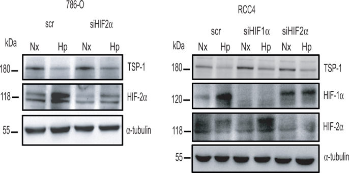 TSP-1 regulation in RCC cell lines is independent of HIF. TSP-1 and HIF2α protein levels in 786-O cells transfected with a scrambled siRNA (scr), or siRNAs specific for HIF2α (siHIF2α) were analyzed after 24 h under normoxic or hypoxic conditions (left panel). TSP-1, HIF2α and HIF-1α protein levels in RCC4 cells transfected with scrambled (scr) or siRNA to HIF-1α (siHIF1α) or HIF-2α (siHIF2α) were analyzed after 24 h in normoxic or hypoxic conditions (right), with α-tubulin as a loading control. The results are representative of at least three experiments performed.